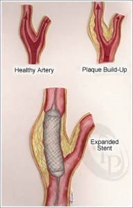 pic-stent